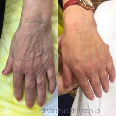 Брахиопластика: подтяжка рук 1