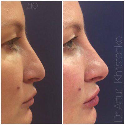 Пластика носа 3