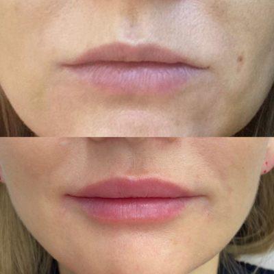Увеличение губ филлером 66