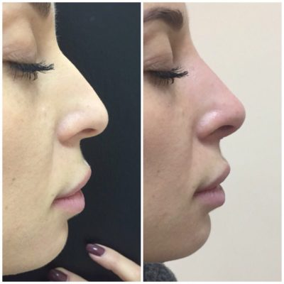 Пластика носа 10