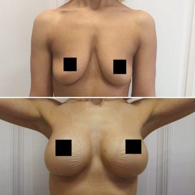 Увеличение груди 1