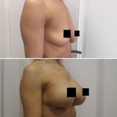 Увеличение груди 0