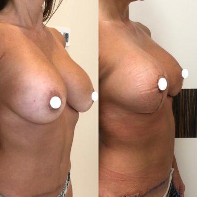 Имплантация груди 27