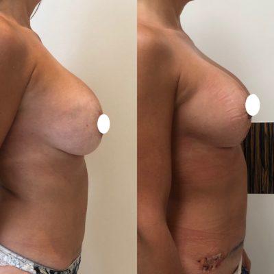 Имплантация груди 28