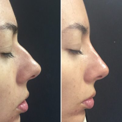Пластика носа 18