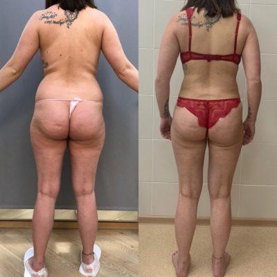 Липосакция спины и боков 1