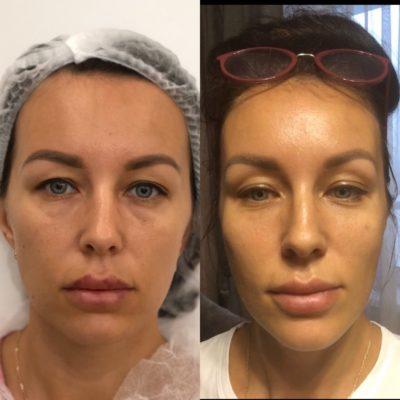 Подтяжка лица без операции 44
