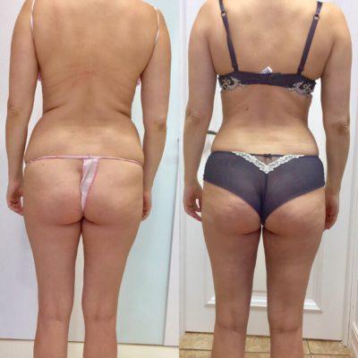 Липосакция спины и боков 2