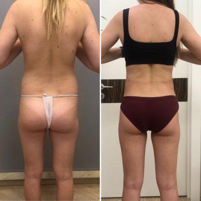 Липосакция спины и боков 3