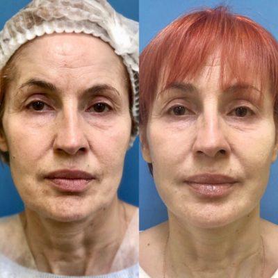 Подтяжка лица без операции 34