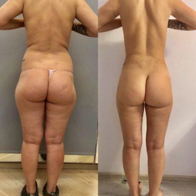 Липосакция спины и боков 5
