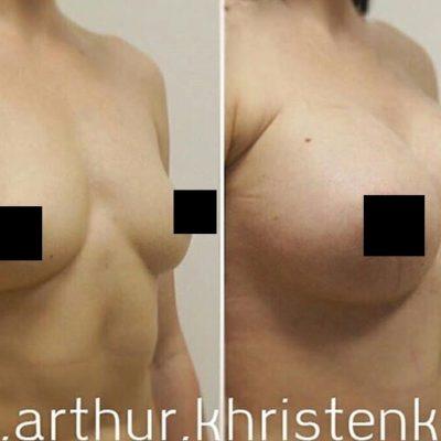 Увеличение груди 4
