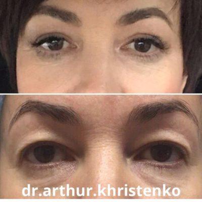 Глаза 65