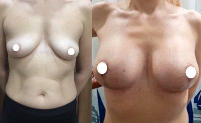 Имплантация груди 25