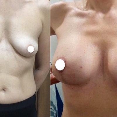 Пластика груди в Санкт-Петербурге 26