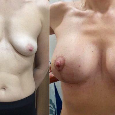 Пластика груди в Санкт-Петербурге 18