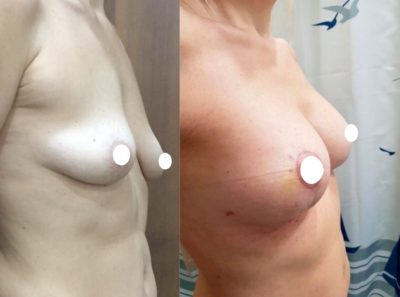 Имплантация груди 24