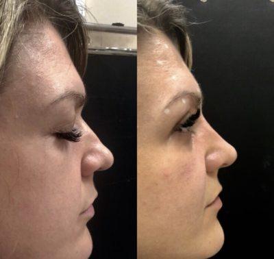 Ринопластика кончика носа 3
