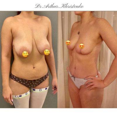 Пластика груди 43