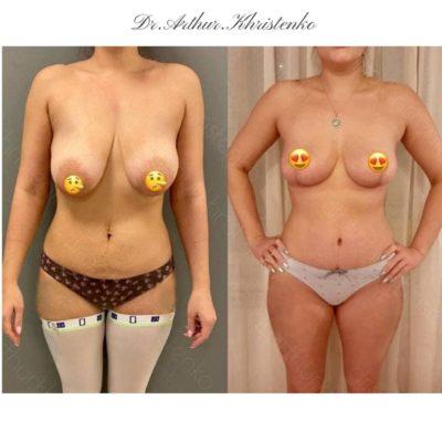 Пластика груди 44
