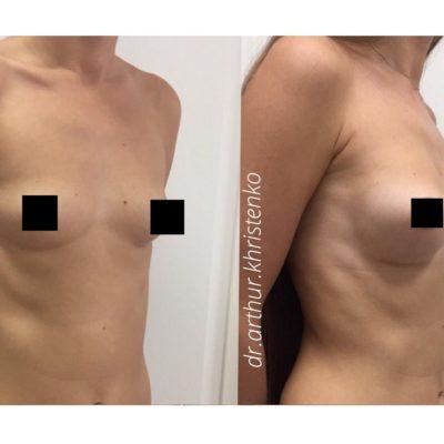 Увеличение груди 2