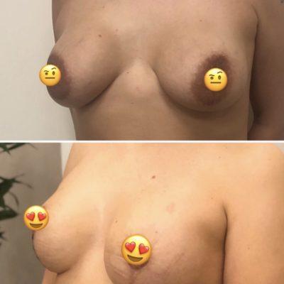 Пластика груди в Санкт-Петербурге 24