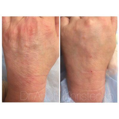 Брахиопластика: подтяжка рук 2