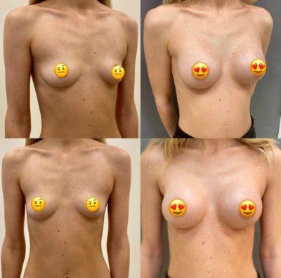 Пластика груди 36