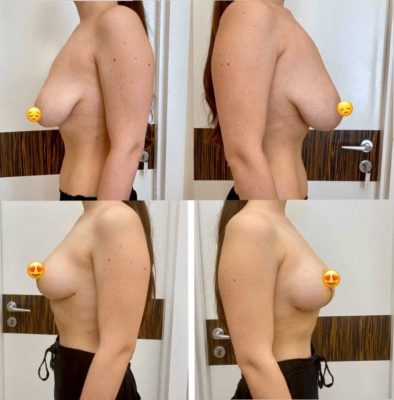 Пластика груди 21