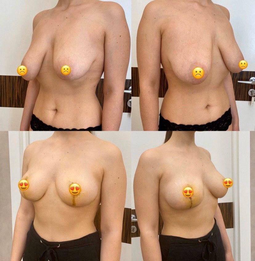 Вертикальная мастопексия на имплантах