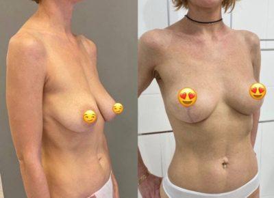 Пластика груди 7