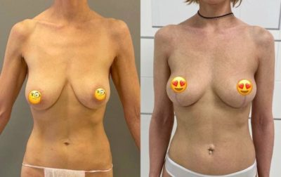 Пластика груди 6