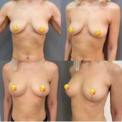 Пластика груди 28