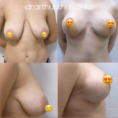 Пластика груди 15