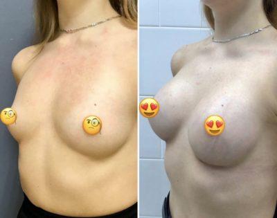 Пластика груди 16