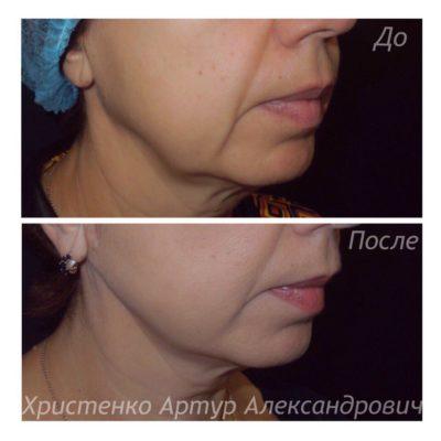 Подтяжка лица без операции 7