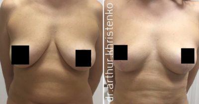 Подтяжка груди без имплантов: мастопексия 0