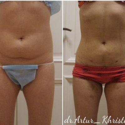 Пластика кожи и мышц живота после родов 10