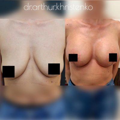 Коррекция груди после родов с превосходным результатом 13