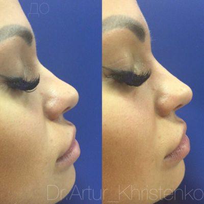 Коррекция формы носа филлером 0