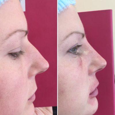 Коррекция формы носа филлером 1