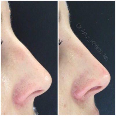 Коррекция формы носа филлерами 2