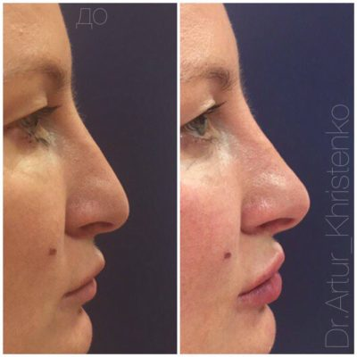 Коррекция формы носа филлером 3