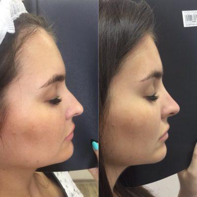 Коррекция формы носа филлером 4