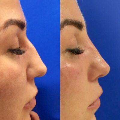 Коррекция формы носа филлером 5