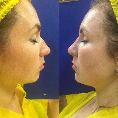Коррекция формы носа филлером 6