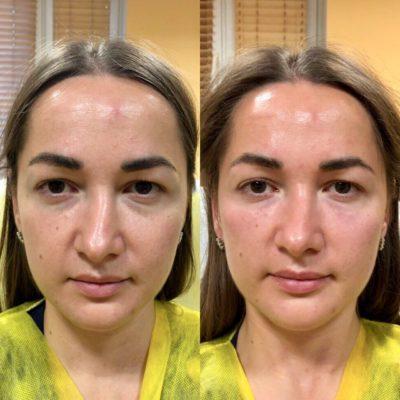 Объемное моделирование лица 18