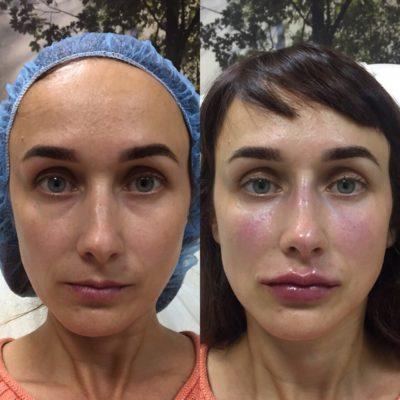 Объемное моделирование лица 55
