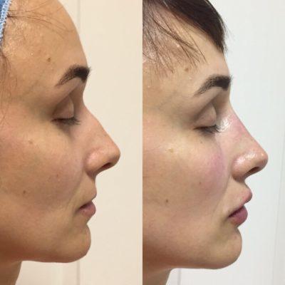 Коррекция формы носа филлером 7