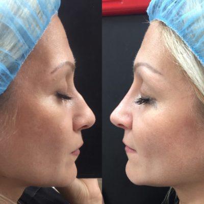 Коррекция формы носа филлером 8